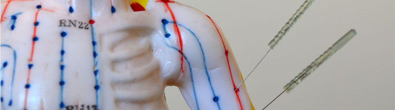 akupunktur-5